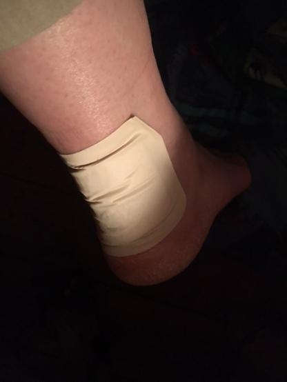 Anklekle
